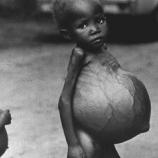 Biafran-CHILDREN-STARVING-008
