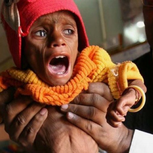 india-starving-baby