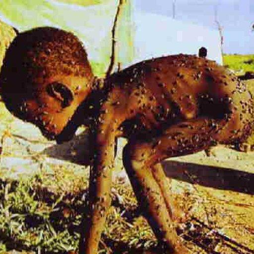 Starvingchildinflies-Africa