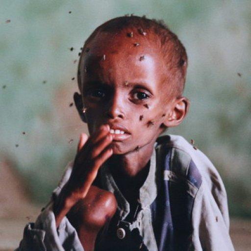 starving-child-in-mogadishu