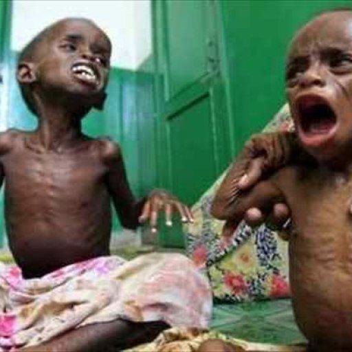 starving-children-in-somalia
