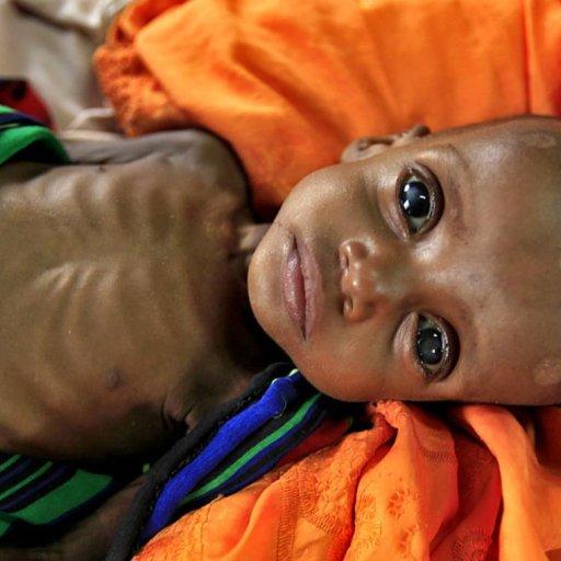 03a-somalia-famine