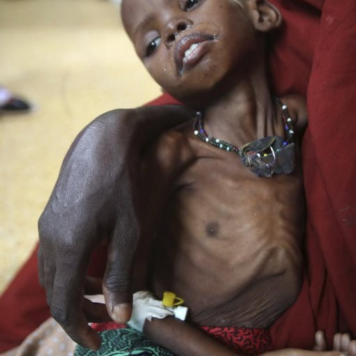 132838-millions-of-malnourished-children-in-horn-of-africa-are-at-risk-of-dyi